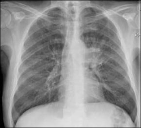 FIGUUR 1. X-thorax: centrale afwijking linker longhilus.