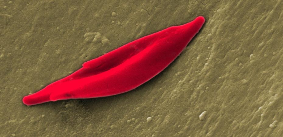 Een sikkelcel