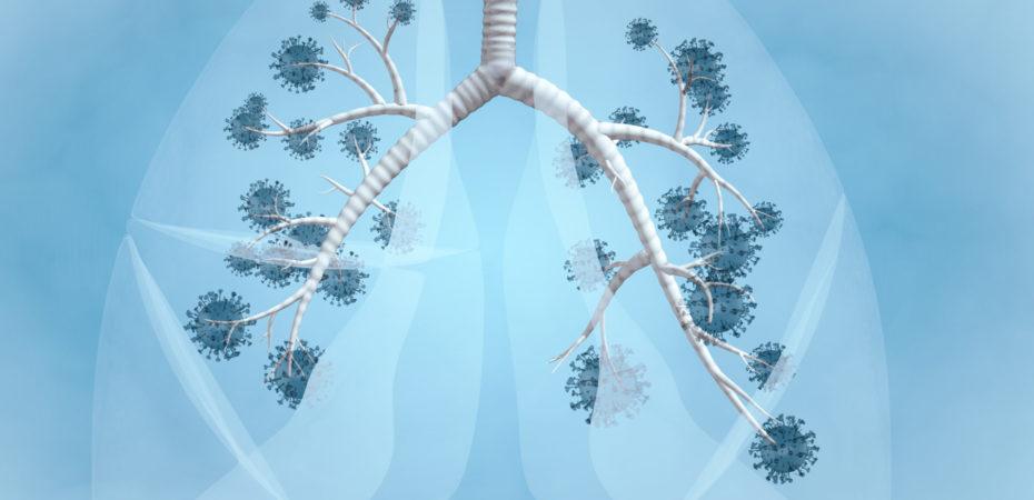 longen, corona, aangetaste longen, longschade, ErasmusMC